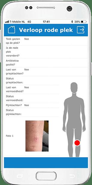 Tekenbeet Lyme Rode plek door teek Gezondheidsmeter PGO